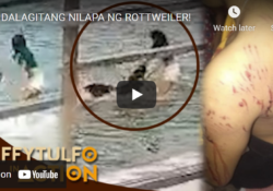 Watch Raffy Tulfo In Action: Poor Girl Attacked And Mauled By Rottweiler Family Asked For Help